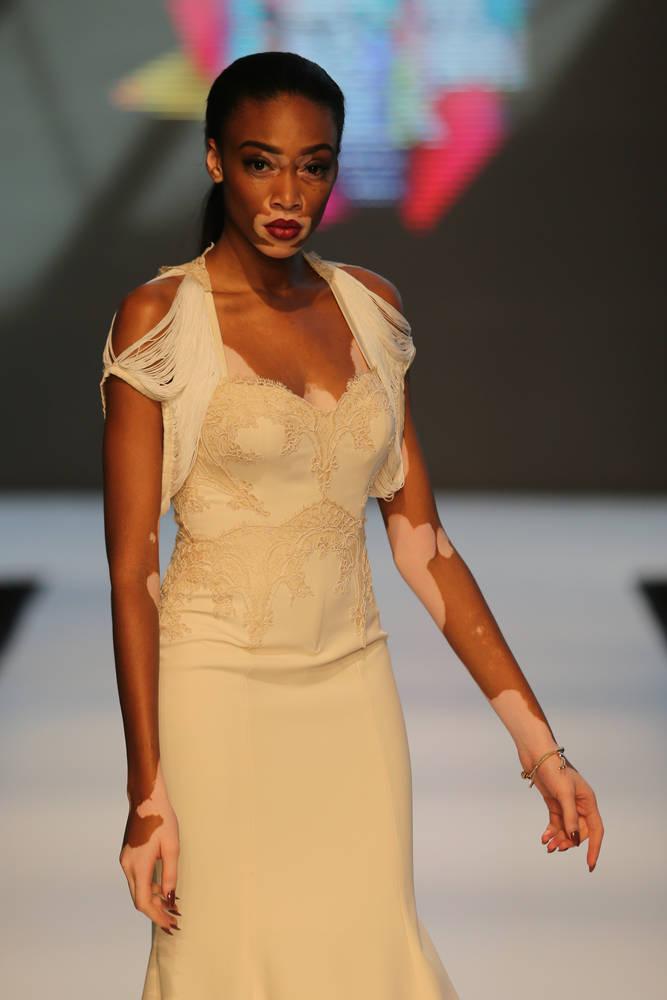 Vitiligo model Chantelle Winnie - schoonheidsidealen verschuiven