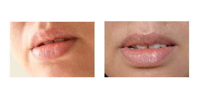 Natural lips and lips with EOS Lip Balm